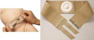 Применение пластыря от пупочной грыжи для новорожденных