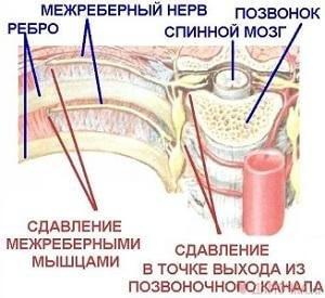Симптомы невралгии межреберной
