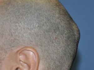 Остеома чаще всего возникает у мужчин