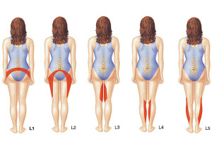 Симптомы грыжи межпозвоночного диска
