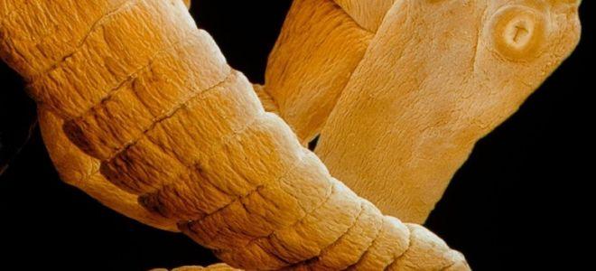 Карликовый цепень и лечение гименолепидоза