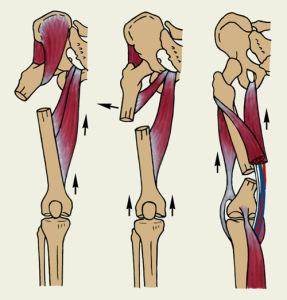Бедренные переломы можно разделить на три группы, каждая из которых включает в себя отдельные виды повреждений
